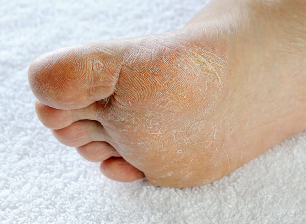 remedies for athlete's foot