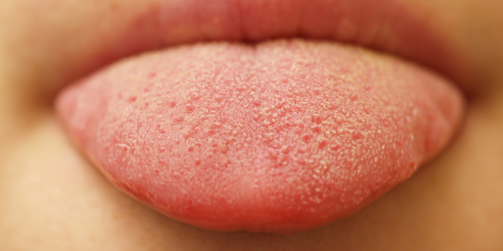 Burning Tongue Syndrome  Symptoms, Causes, Home Remedies -2554