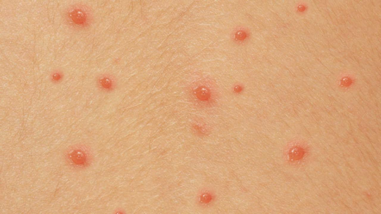 Natural Remedies Chicken Pox