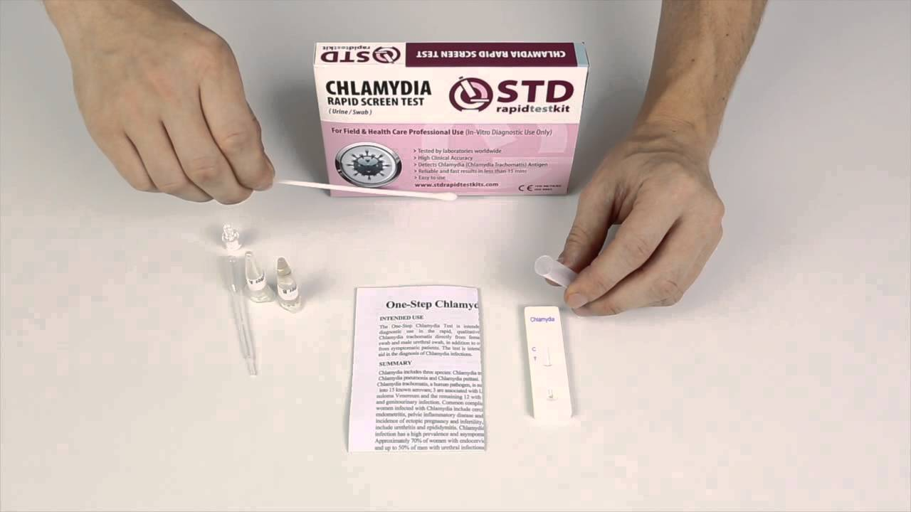 chlamydia test