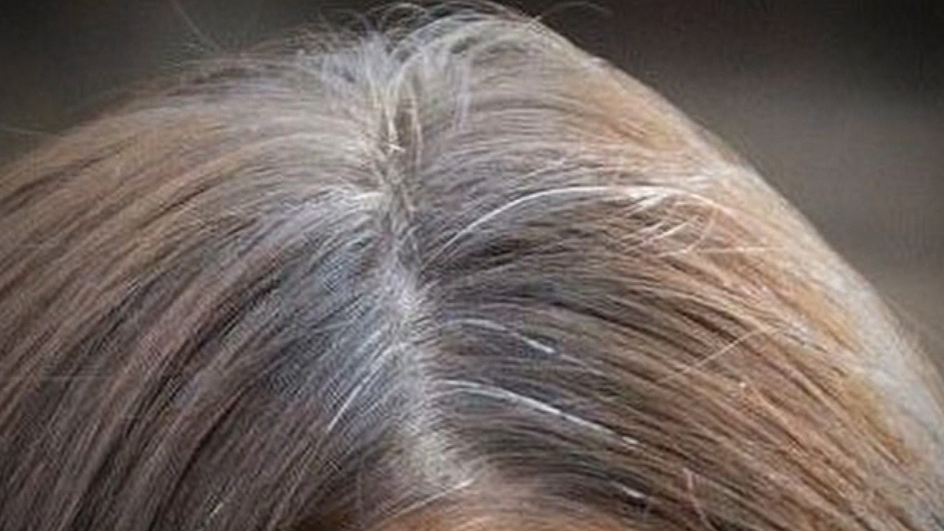 Premature Gray Hair Medical Problems Find Home Remedies